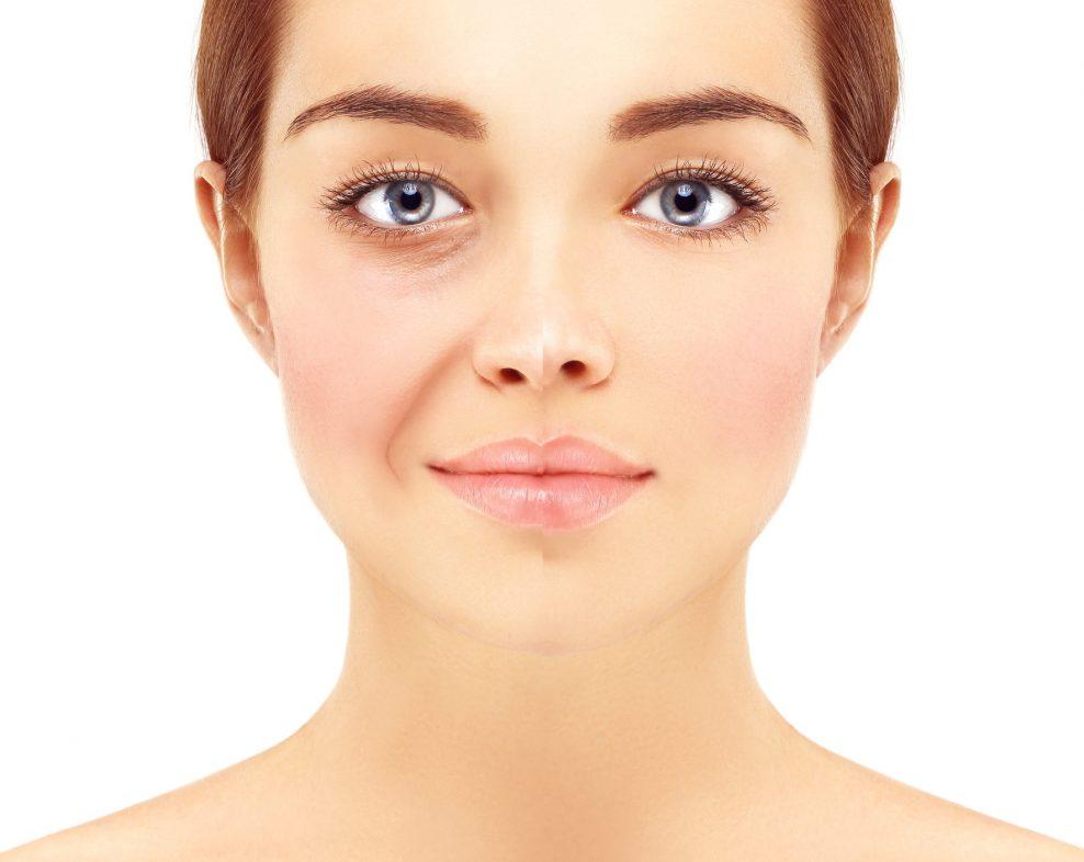 chirurgie-visage-lipostructure-docteur-jorquera-montpellier