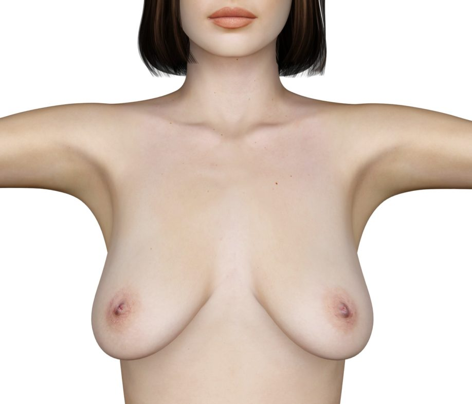 lifting du sein-docteur-jorquera
